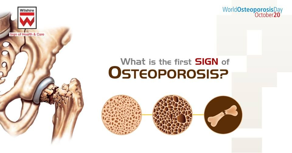 13+ Who is osteoporosis most common in ideas