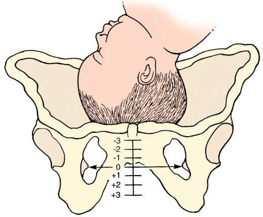 Image result for -2 station pregnancy
