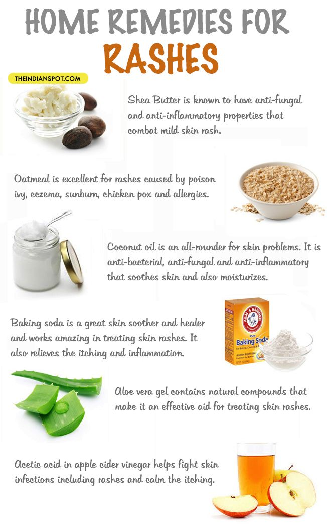 Pin On Diy Home Remedies