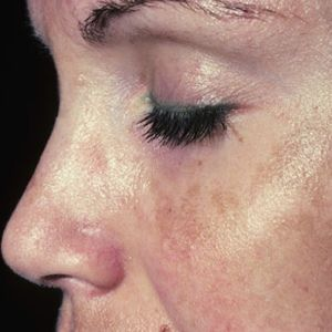 age spots on face after pregnancy