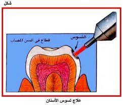 حشوات الاسنان تستخدم حشوات الأسنان بشكل رئيسي لعلاج تسوس الأسنان و في حالة وجود تسوس يقوم طبيب أسنانك بحف Disney Characters Character Fictional Characters