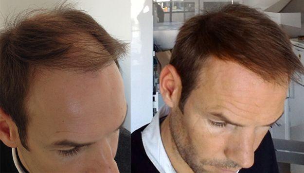 Greffe de cheveux FUE : Résultats Avant-Aprè