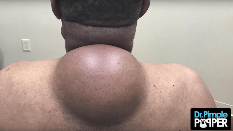 dr pimple popper scabies