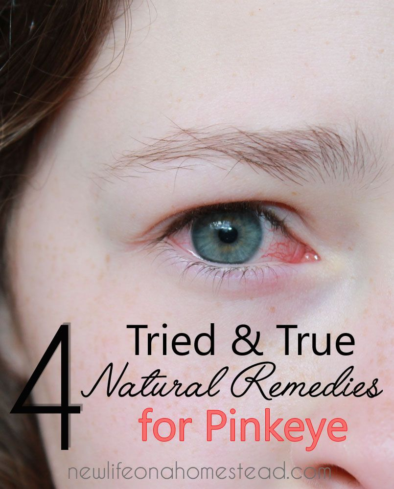 12 Tried And True Natural Remedies For Pinkeye Natural Pink Eye