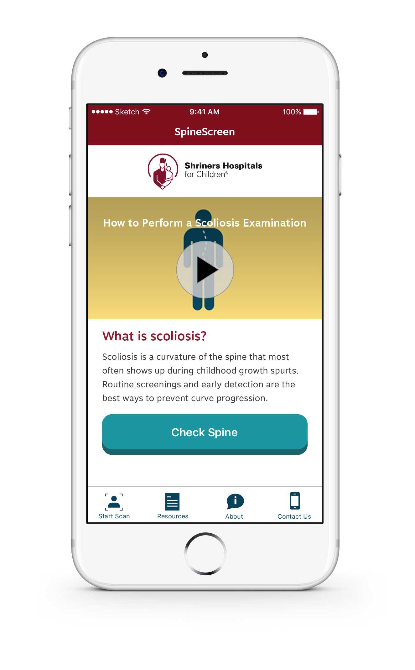 New Important SpineScreen App for Scoliosis Screening from