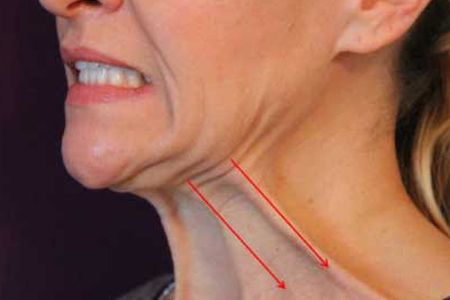 How To Get Rid Of Cleft Chin Without Surgery
