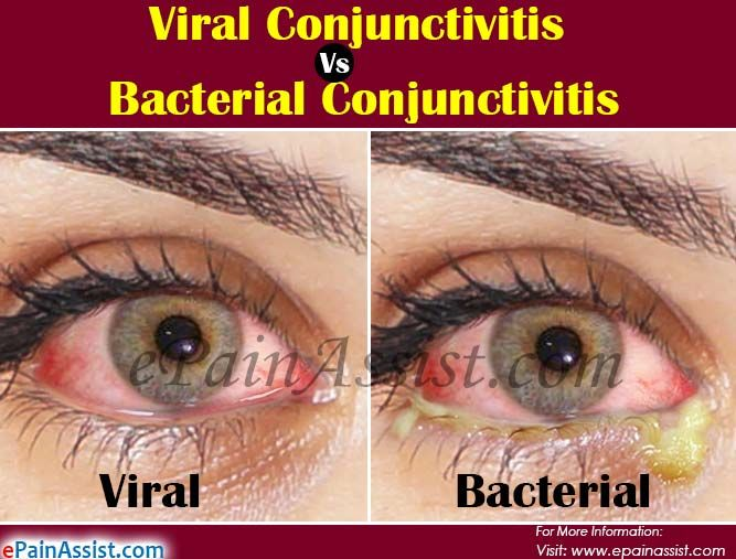 Viral Vs Bacterial Conjunctivitis Differences Worth Knowing