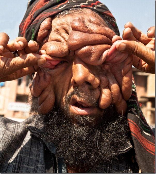 A rare skin disease weird stuff pinterest rare disease face a rare skin disease publicscrutiny Choice Image