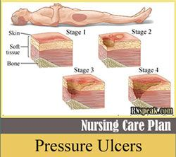 Nursing Care Plan Of Pressure Ulcers Impaired Skin Integrity Pressure Ulcer Nursing Care Plan Skin Ulcer