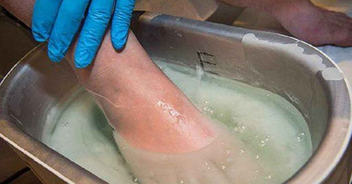 picioarele de mâncărime varicoză