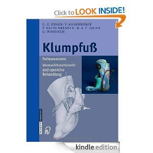 Klumpfuß: Pathoanatomie, Manuell-funktionelle und operative Behandlung (German Edition) by G.U. Exner. $61.32. 140 pages. Publisher: Steinkopff; 2005 edition (May 9, 2005)