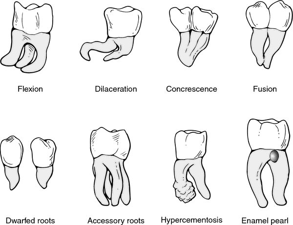 This is a great visual of how the roots can look on your tooth!  They are not all the same.