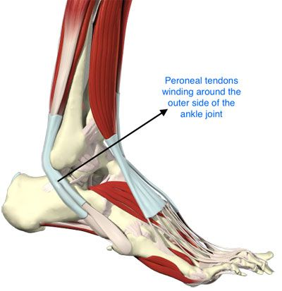 Peroneal Tendonitis A Better Me Pinterest Ankle Surgery