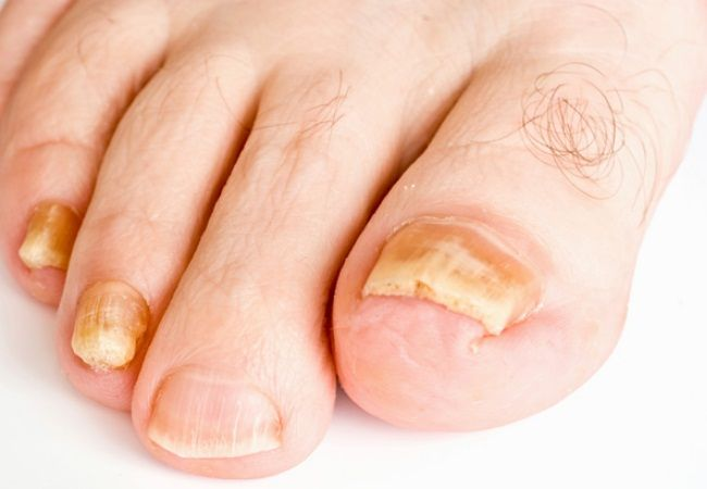 How To Get Rid Of Thick Toe Nails | Health | Toenail fungus ...
