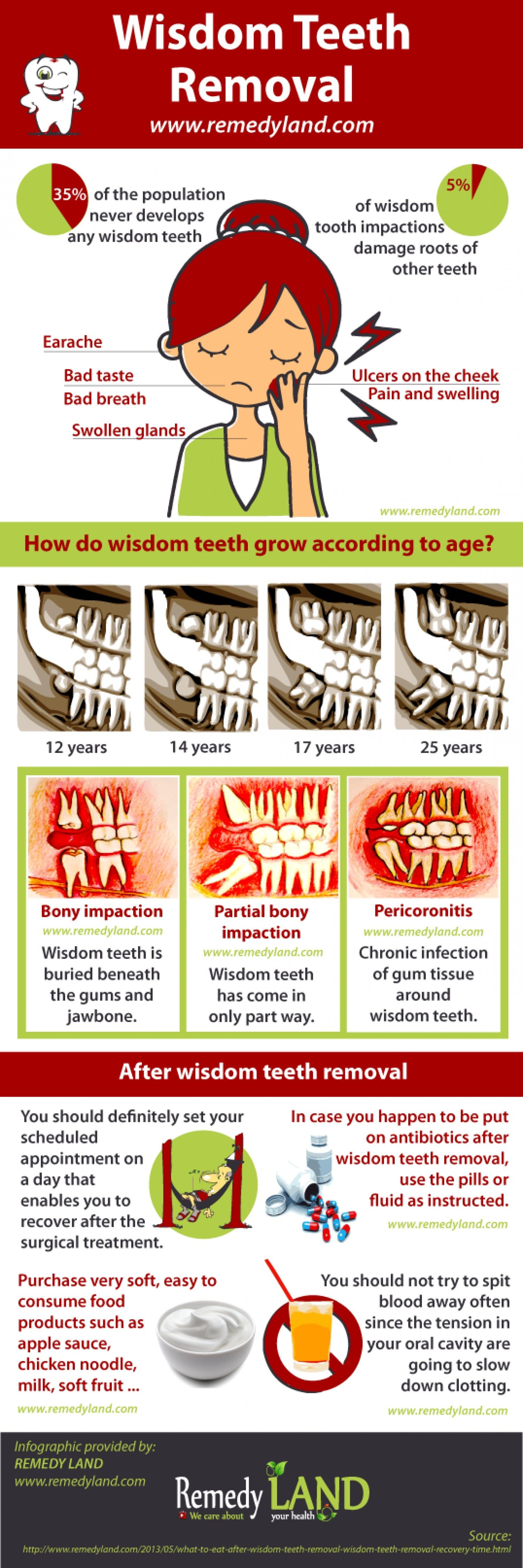 Wisdom teeth removal Infographic Helpful Hints Wisdom