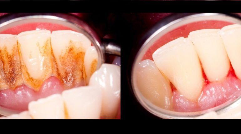 how to remove tartar from dentures