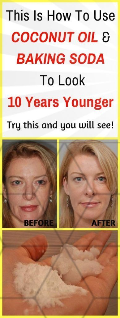 Photo of This is how coconut oil and baking powder are used to be 10 years younger …