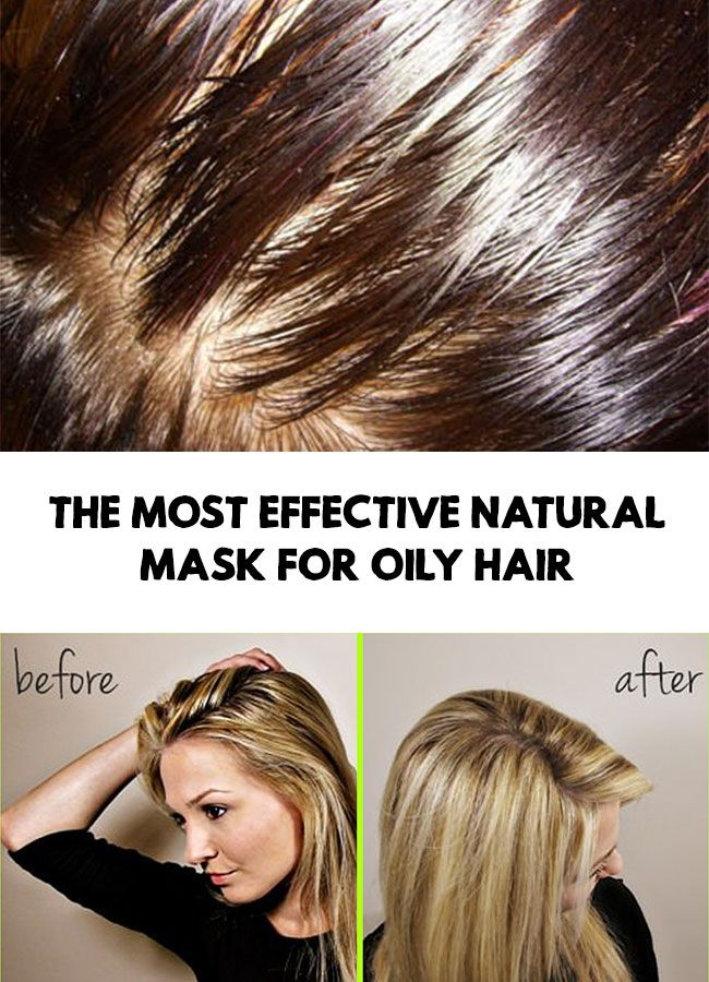 Oily hair - The most effective natural mask for oily hair #oilyhair