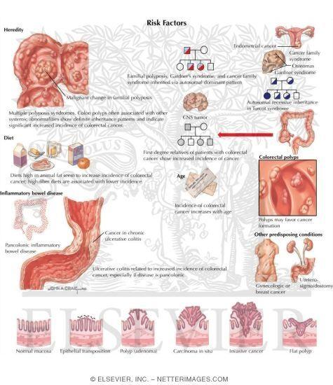 Colon Cancer Symptoms In Men   Polyps, Colon   Pinterest   Colon ...
