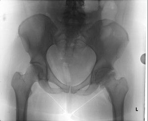 Hip Labral Tears: Why Early Care is Important