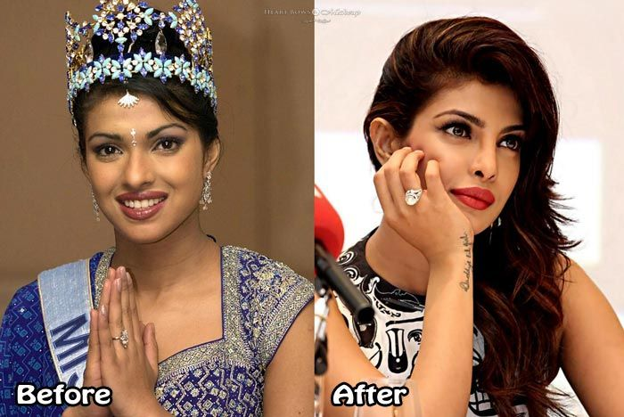 Top 10 Bollywood Celebrity Plastic Surgery Before and ...