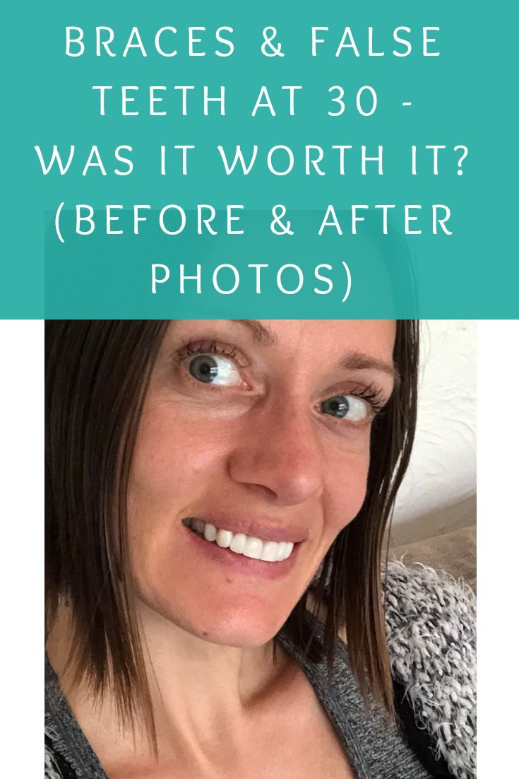 how to fix an overbite uk