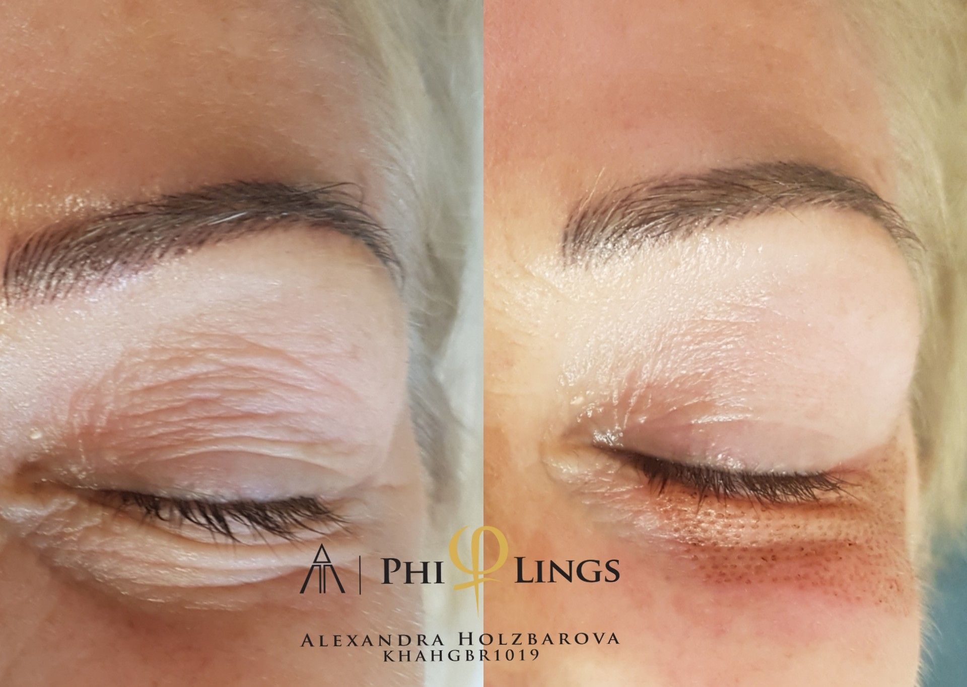 Pin by evin on Beauty care Eyelid lift, Aesthetic clinic