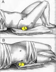 Liberar el nervio ciático por la presión del músculo piramidal. Colocamos una pelota de tenis debajo del glúteo, en el músculo piramidal. Hay que situar la pelota lo suficientemente lateral (tal y como muestra el dibujo) para evitar el nervio ciático. Al colocar la pelota notarás un dolor que irá remitiendo al cabo de unos segundos, 40 ó 60 aproximadamente. Cambia de glúteo y vuelve a mantener la presión hasta que el dolor desaparezca. Repite el proceso esta vez tumbado de lado.