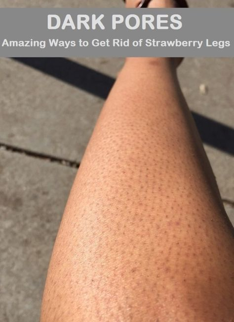 Can You Get Acne On Your Legs How To Get Rid Of Strawberry Legs Dark Pores On Legs In 2020 Strawberry Legs Dark Pores Homemade Wrinkle Cream
