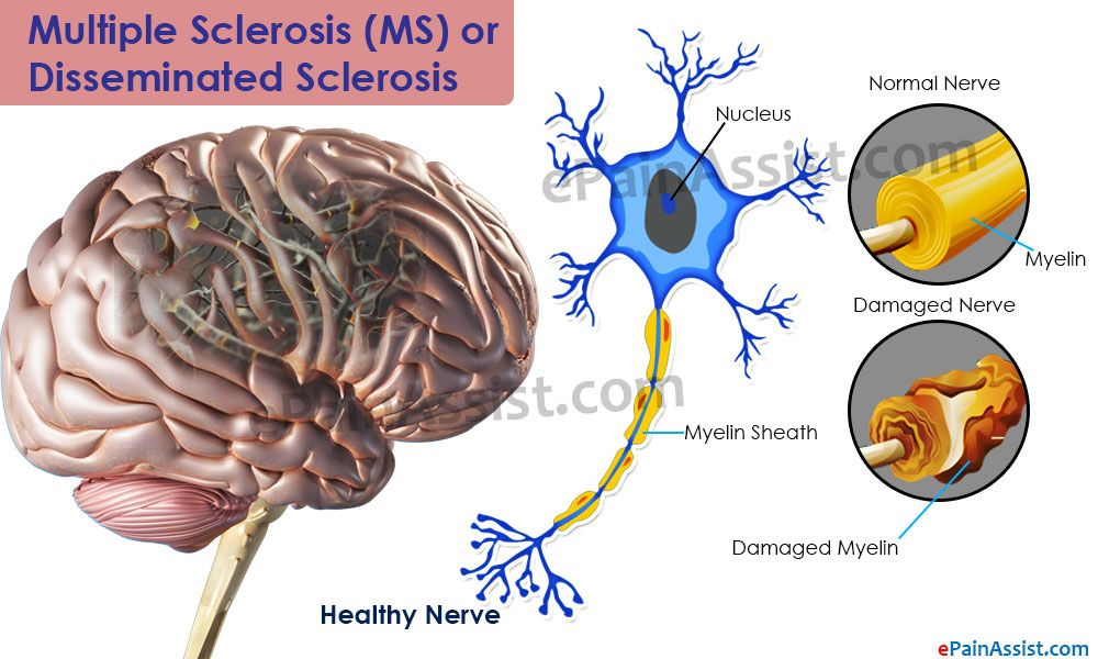 Magnífico Multiple Sclerosis Anatomy And Physiology Bosquejo ...