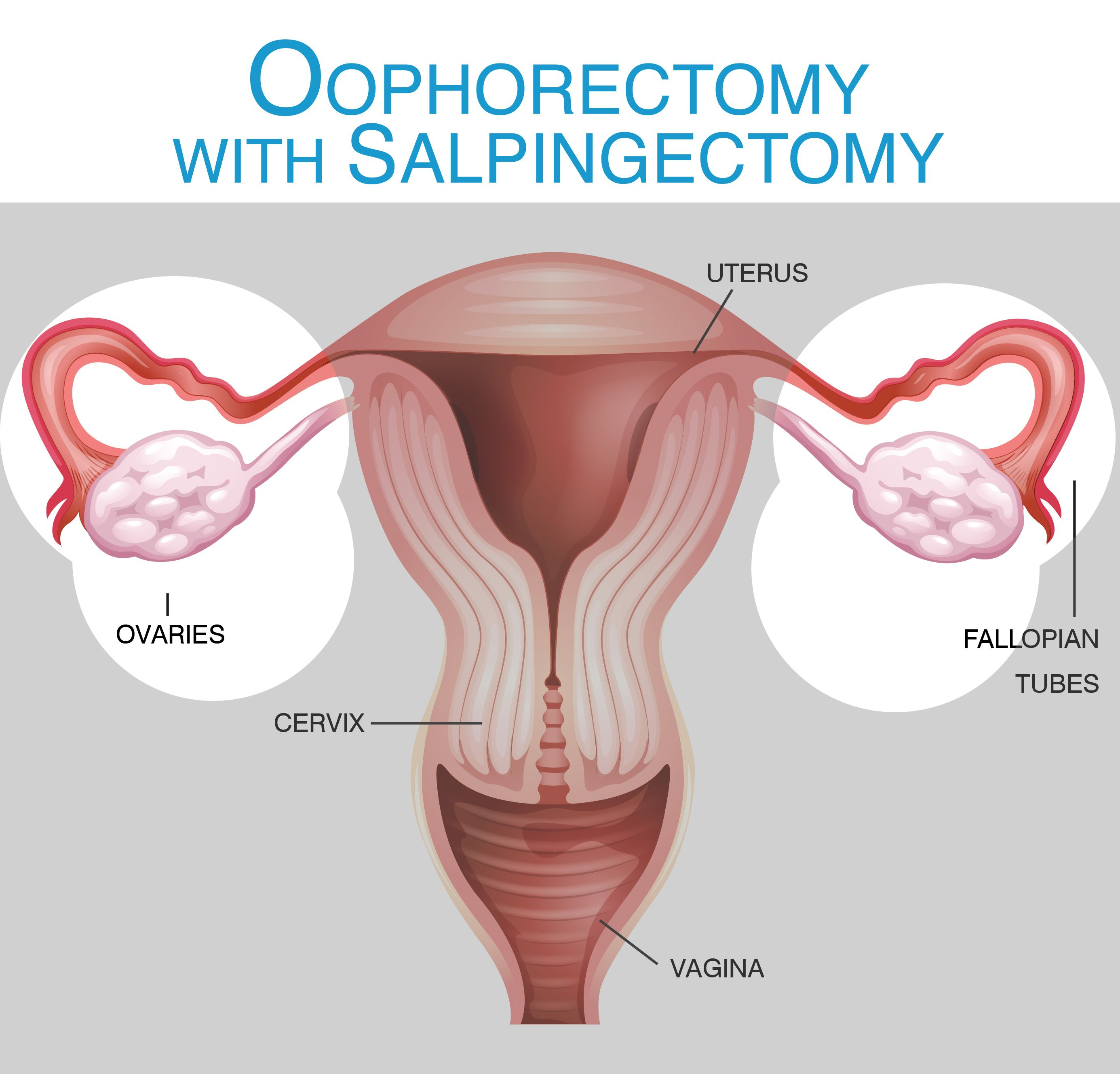 Oophorectomy-Salpingectomy  Hysterectomy Information -8519