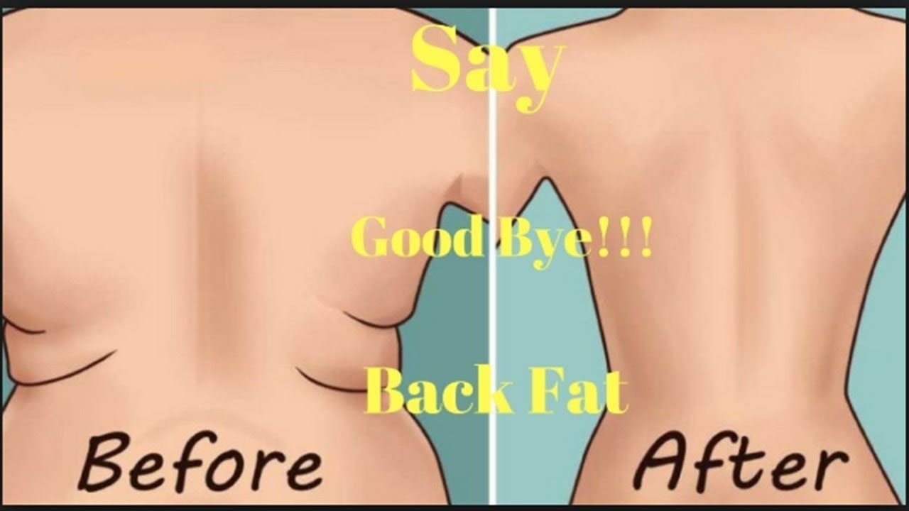 3 Simple Ways To Lose Upper Back Fat In A Week pictures