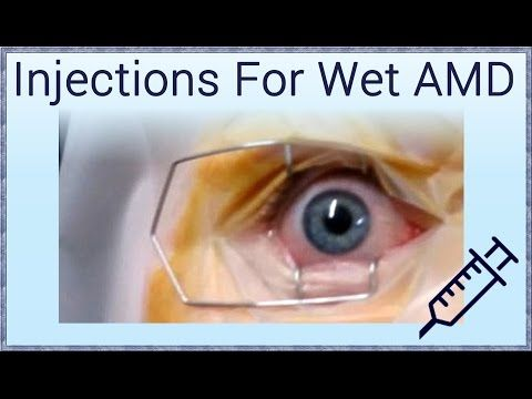 Matheson Optometrists Blog Fancy Seeing How Injections For Wet