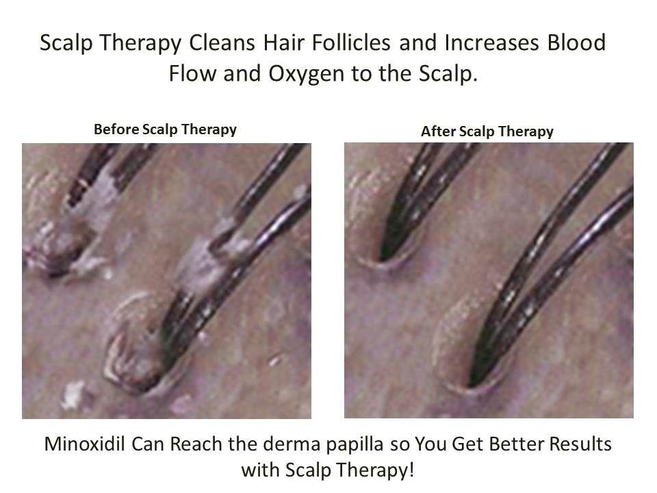 Ivermectin cream for head lice