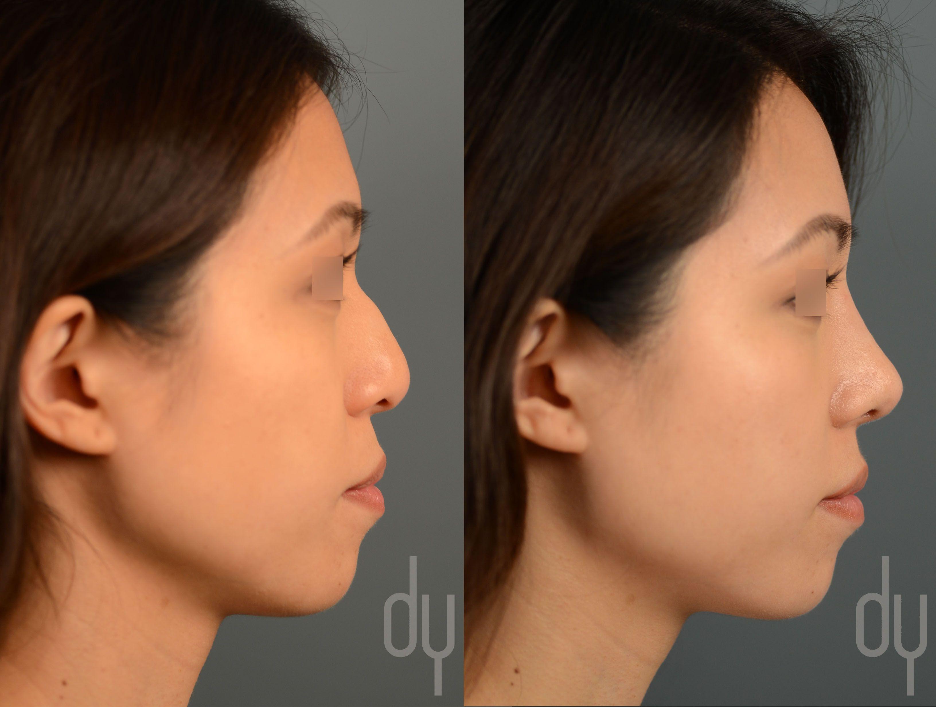 Understand you. asian rhinoplasty specialist were