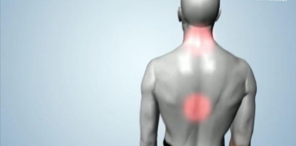 7 طرق لعلاج الم الظهر الشديد بدون جراحة