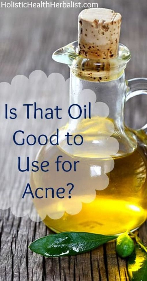 Is That Oil Good to Use for Acne  Find out the comedogenic ratings of the most popular oils used for acne prone skin