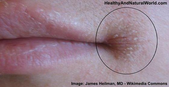 natural medicine for pimples