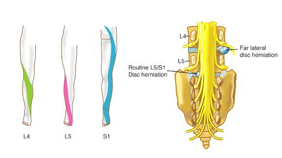 Nervio nhsd del disfunción femoral