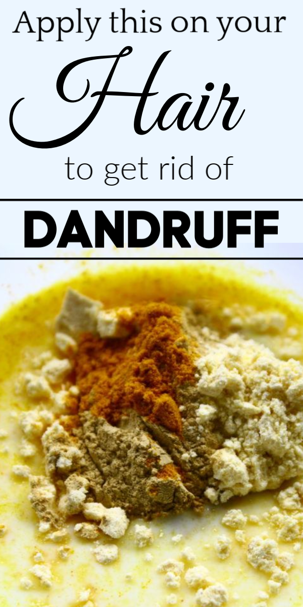 0effa03bc0423974172ee468af62c729 - How To Get Rid Of Dandruff Naturally In One Day