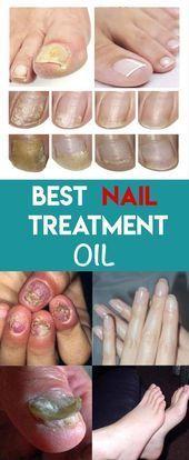 Best Nail Fungus Care Oil – #Bestes # Nail FungusCare Oil – #Bestes # Nail Fungu…
