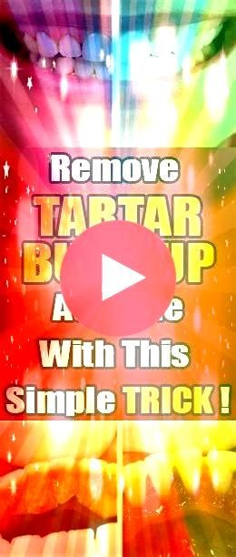 Remove Tartar Buildup on Your Teeth Naturally Dental plaque is a biofilm or mass of bacteria that grows on surfaces within your mouthHow To Remove Tartar Buildup on Your...