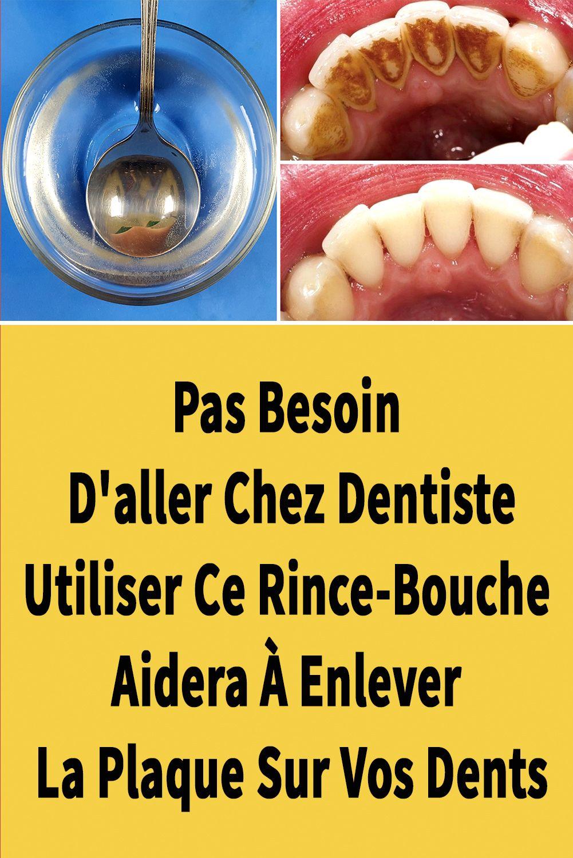 Comment Avoir Les Dents Blanches Sans Aller Chez Le Dentiste