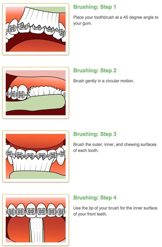 Even if you don't have braces, this shows you how to brush ...