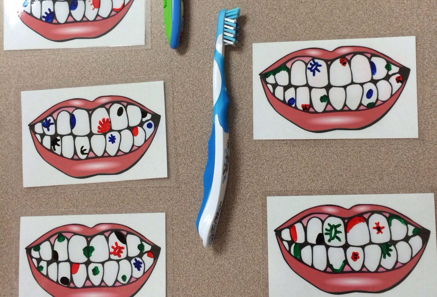 Print Out Pictures Of Teeth And Have Them Laminated Then Use Dry Erase Markers To Draw Sugar