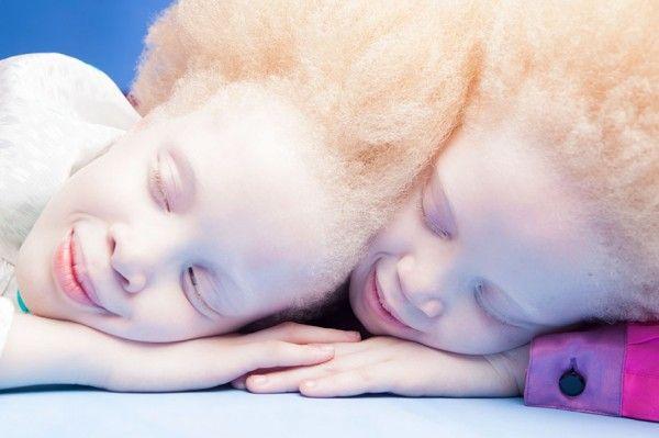 Flores Raras, jumeaux albinos du Brésil, photographie de Vinicius Terranova