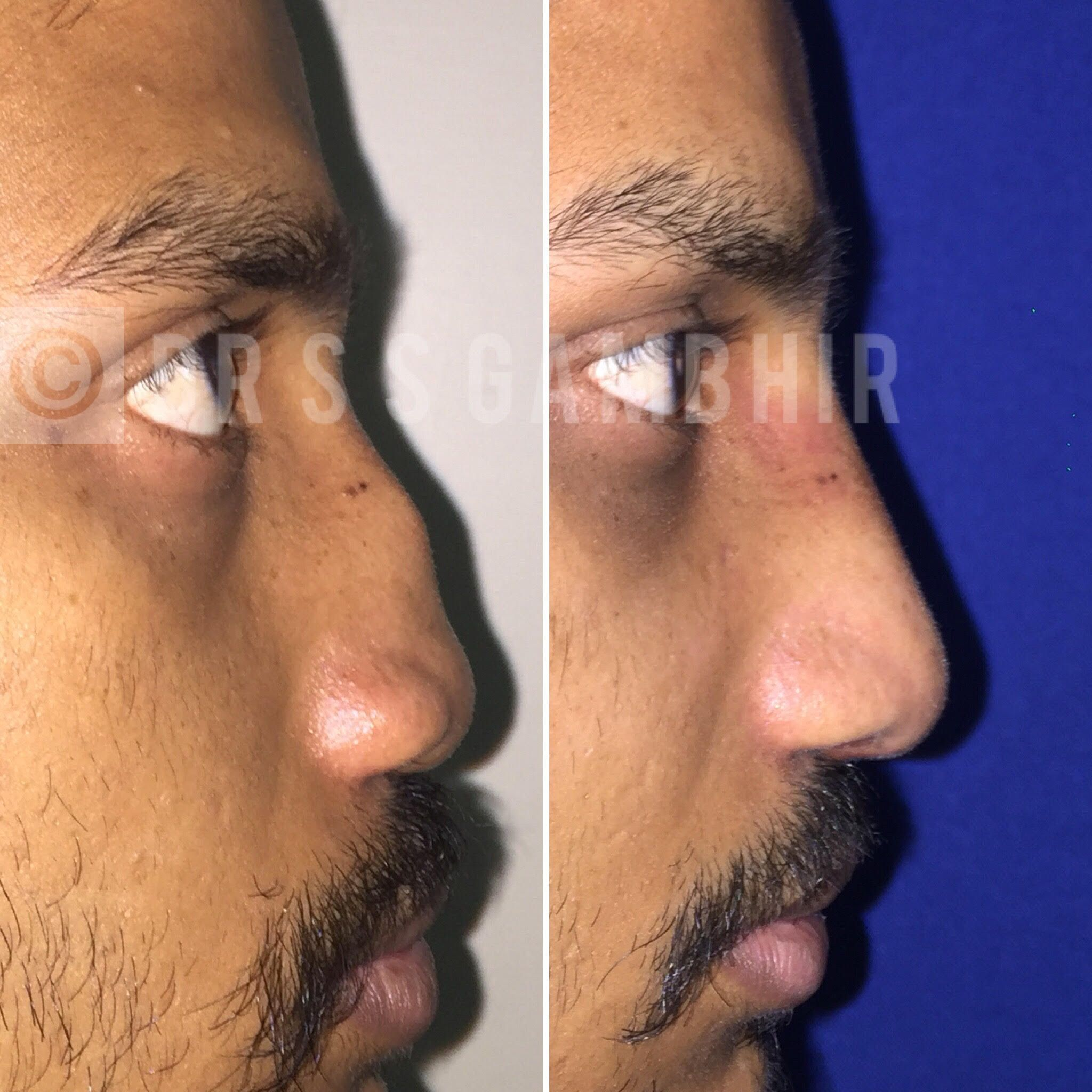 Get A Nose Job Done By Experts Rhinoplasty Is A Process To Transform The Nose Through Reshaping Bine And Cart Rhinoplasty Rhinoplasty Surgery Rhinoplasty Cost