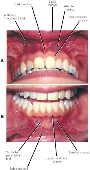 Gums Cause Heart Trouble  Really  - Dental News
