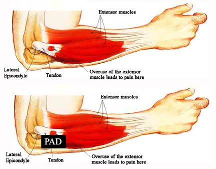 Tennis Elbow Diagrams Google Search Injuries Pinterest