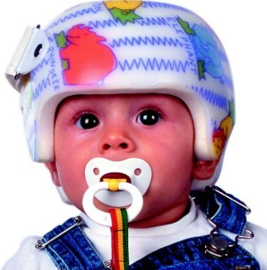 PT Corner: Cranial Remolding Helmets: To Be or Not to Be?  -  Pinned by @PediaStaff – Please Visit http://ht.ly/63sNt for all our pediatric therapy pins